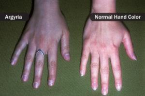 tulburarea de piele albastra